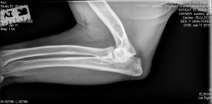 Right Elbow Radiograph